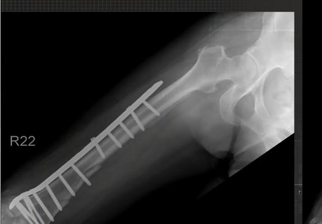 Self-healing Bone Fractures