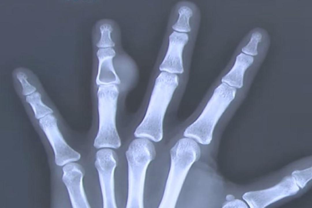 Benign Bone Tumor