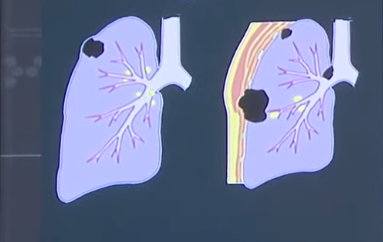 Colorectal Cancer and Lung Cancer